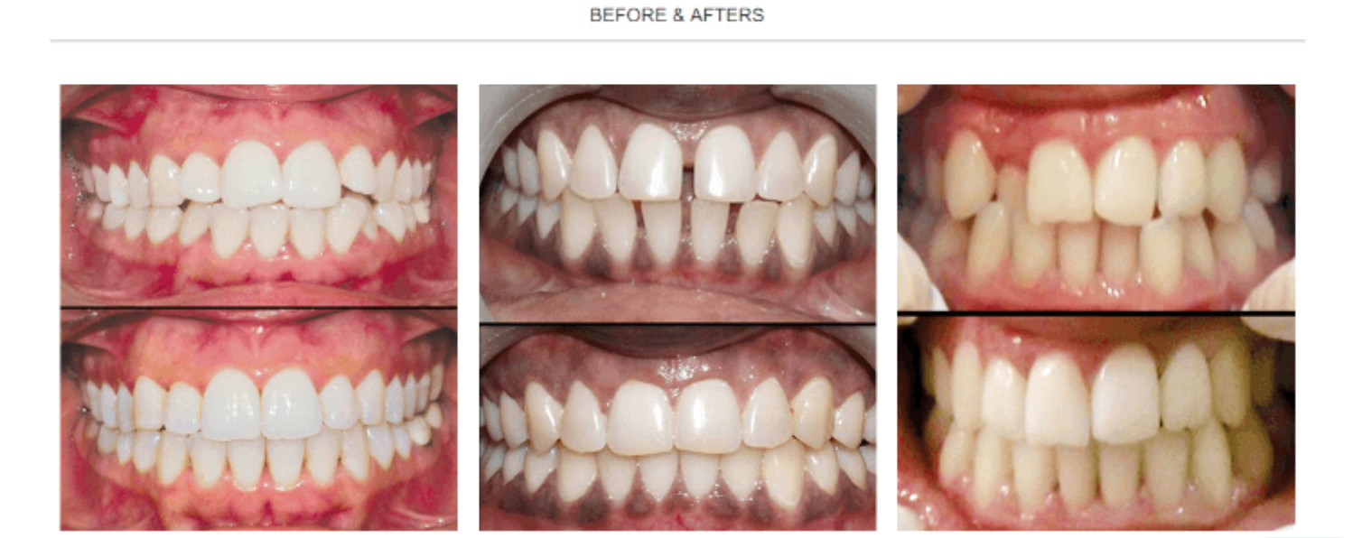 smilelove aligners results