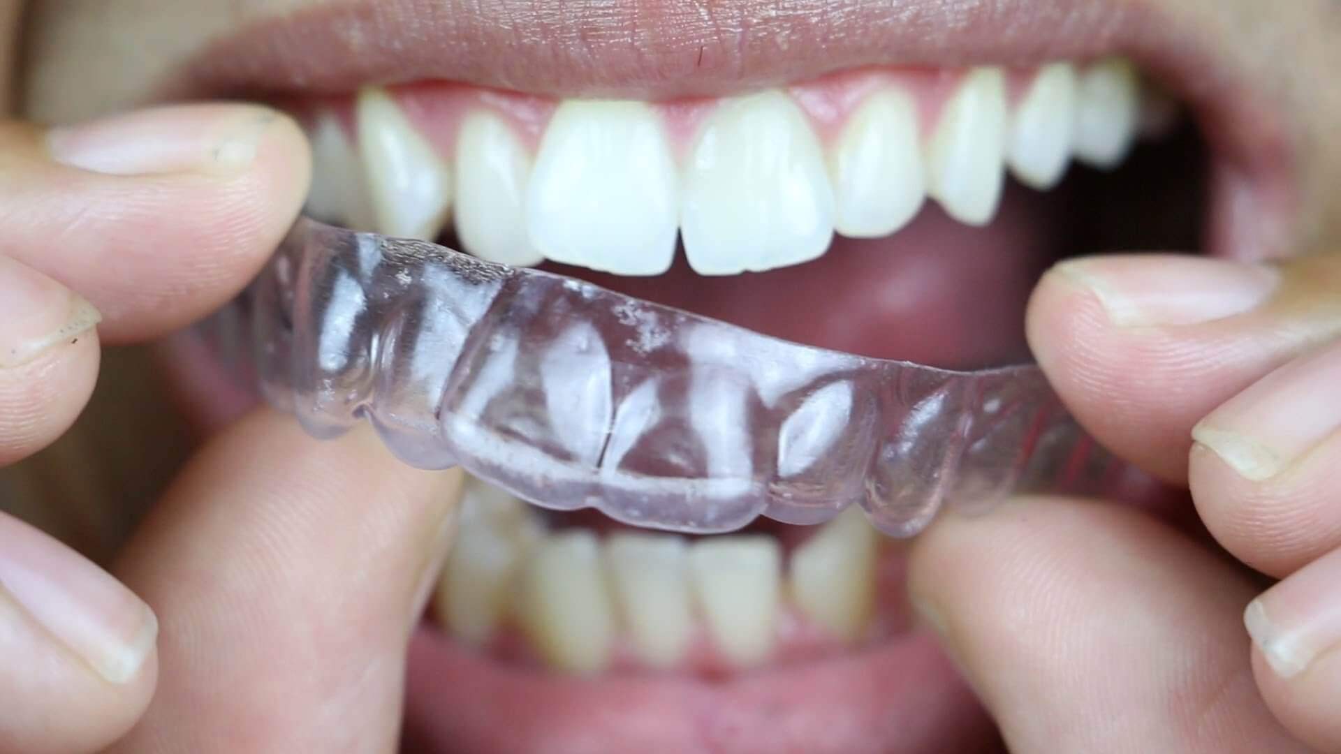best teeth aligners
