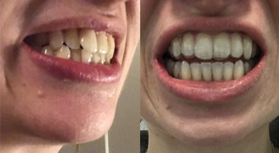 smilelove treatment progress